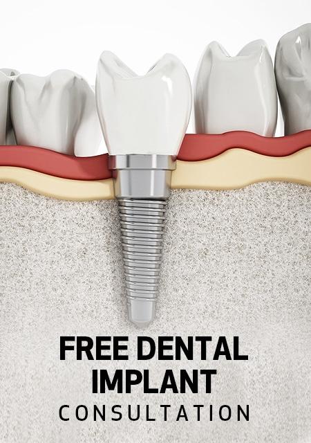 Free-Dental-Implant-Consultation